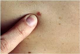 Malignant melanomas